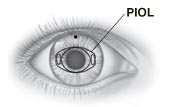 Front view of eye showing position of PIOL behind iris.