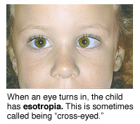Picture of a child with estropia, a condition when an eye turns in.