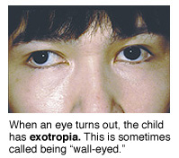 Picture of a child with exotropia, when one eye turns out.