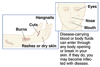 Hand and forearm showing hangnails, cut, burn, rash, and dry skin. Front view of face. Disease-carrying blood or body fluids can enter through any body opening or break in skin. If they do, you may become infected with disease.