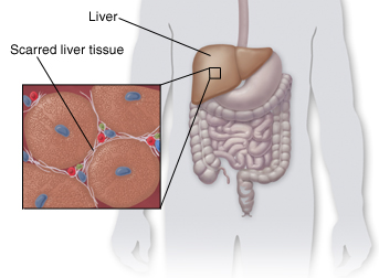 Outline of human figure showing liver and digestive tract. Closeup of liver tissue shows scarring.