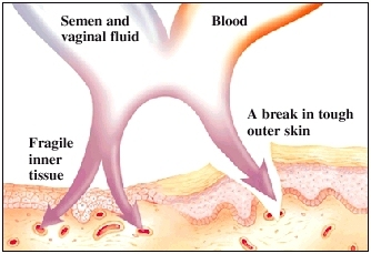 Cross section of fragile inner tissue next to break in tough outer skin. Arrows show semen, vaginal fluid, and blood entering skin through break and directly into inner tissue.