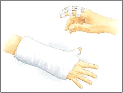 Image of cast and splints