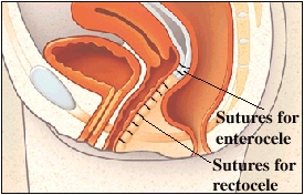 Cutaway view of rectum and vagina