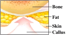 Image showing callus harming healthy tissue on foot