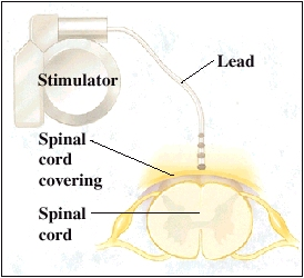 Top view of spinal cord with stimulator and lead.