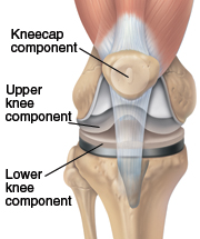Image of a knee prosthesis