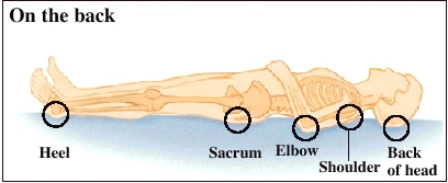 Common sites of pressure sores when lying on the back include the heel, sacrum, elbow, shoulder, and the back of head.