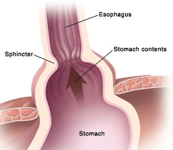 Closeup of diaphragm with large opening allowing top of stomach and sphincter to move up into chest cavity. Stomach contents flow up into esophagus.