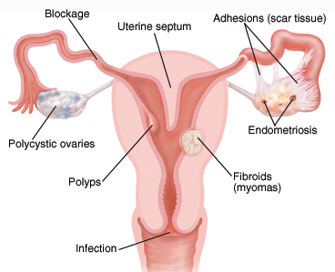 Cross section front view of female reproductive system showing polycystic ovary, blockage in fallopian tube, fibroid in wall of uterus, endometriosis, adhesions, septum in uterus, polyp in uterus, and Infection in cervix.